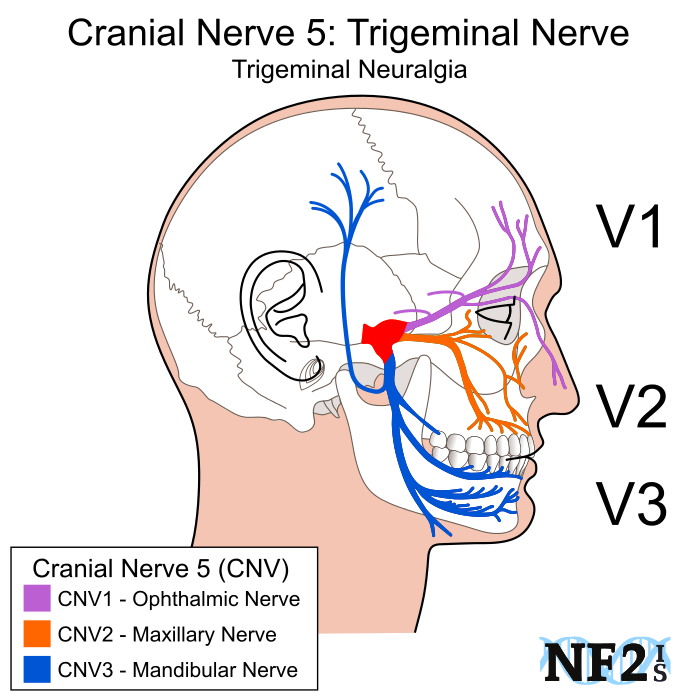 Cranial Nerve 5, subparts, 3 branches, branches, filiment, Trigeminal Nerve
