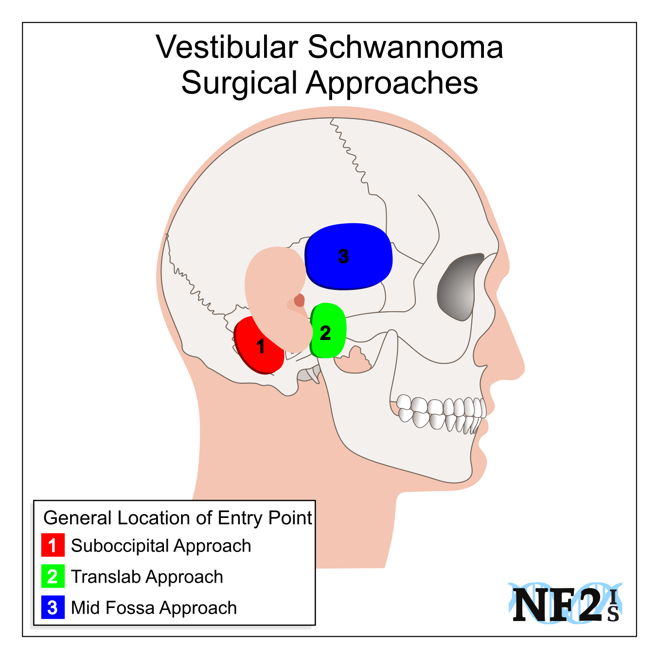 Vestibular Schwannoma Surgery, Vestibular Schwannoma Approach, Translab Approach, Translabyrinthine,  				Mid Fossa Approach, Mid-Fossa Approach, Middle Fossa Approach, Middle Cranial Fossa Approach,  				Suboccipital Approach, Retrosigmoid Approach, Keyhole Approach