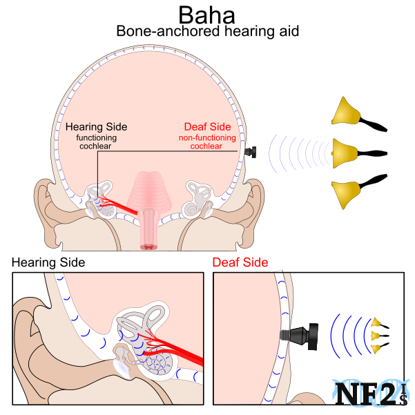 Baha, bone-anchored hearing aid, Cochlear , single sided deefness, deaf,