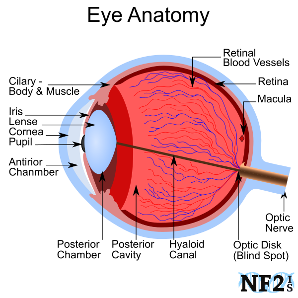 Cataracts, Anterior Chamber, Posterior Chamber,  Retinal Blood Vessels, Retina, Cornea, Optic Nerve, Macula, Capsular Cataracts,