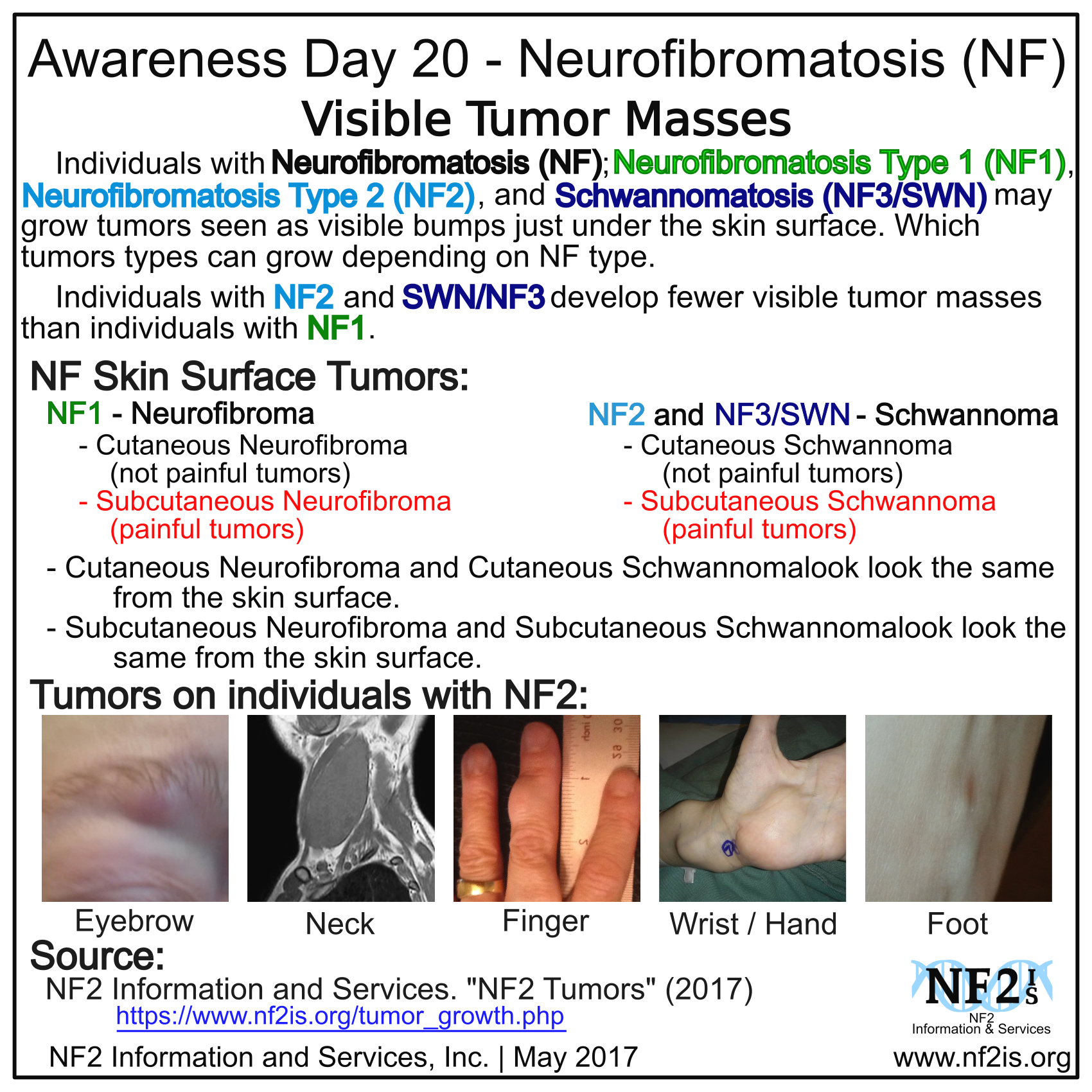 nf1, nf2, nf3, swn, skin surface, tumors, Subcutaneous, Neurofibroma, Schwannoma, Cutaneous