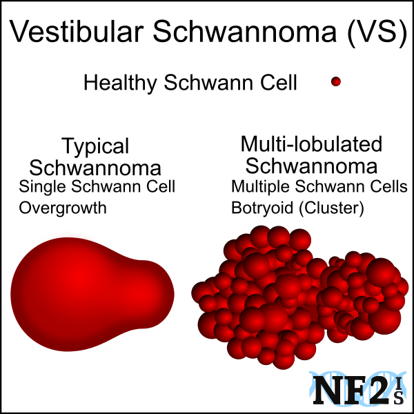 schwannoma, schwann cell, tumor, Monocytic, multilobulated, multilobulated, Polycystic, Multi-lobulated,  					Neurofibromatosis, NF2, polyclonal, botryoid, Neurofibromatosis Type 2 Tumor, Hallmark, multilobulated VS